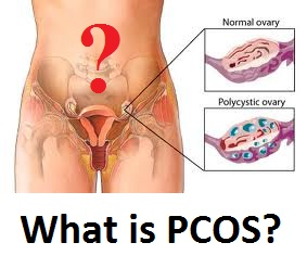 What is PCOS or Polycystic Ovarian Syndrome?